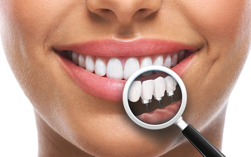 implant-dentar-bacau-805x503