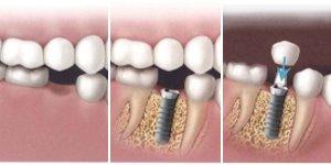 poze-implant